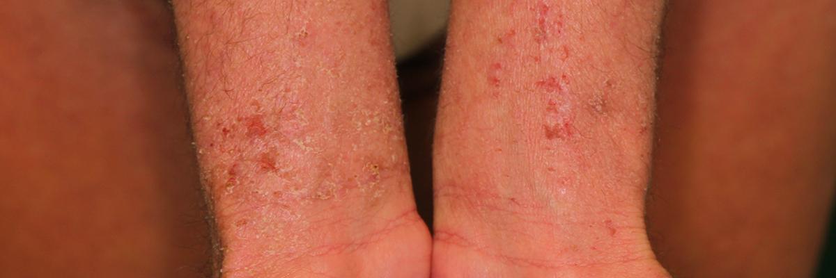 dermatiteatopica1